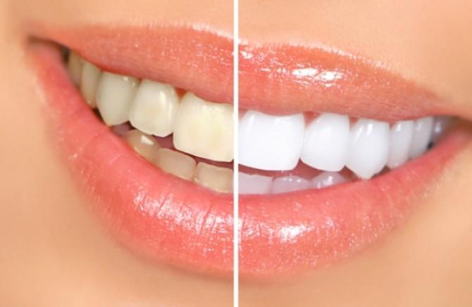 Hidrogen peroksid ispiranje usta