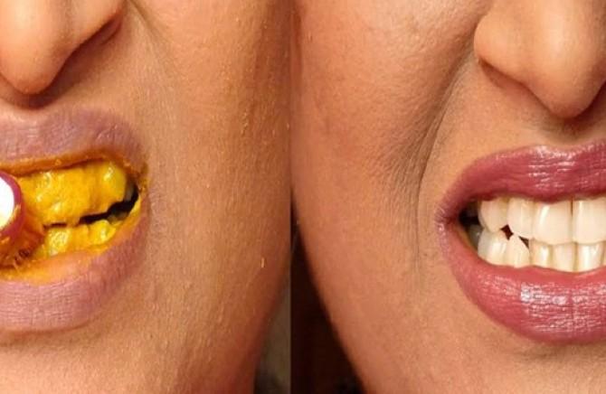 Izbeljivanje zuba gelom cena